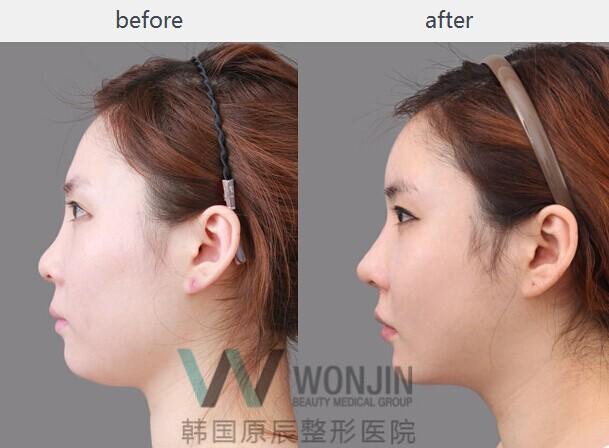 耳软骨隆鼻手术对比图(图片来源于韩国原辰整形医院)