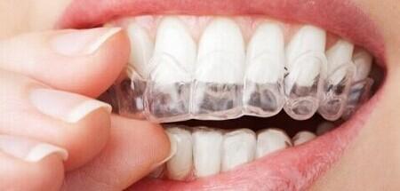 隐形牙箍效果图
