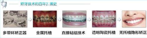 牙齿矫正价格