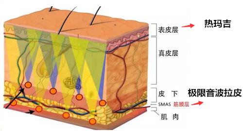 音波拉皮和热玛吉作用层次不同