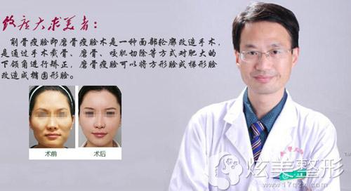 改脸型医生何照华下颌角磨骨