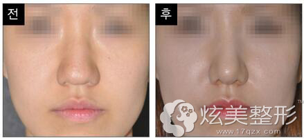 韩国will整形外科隆鼻案例