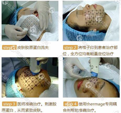 热玛吉除皱手术过程图