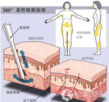 李二天原理瘦身360°吸脂无痕环形术吃饭瘦脸专家采用新宇第打图片