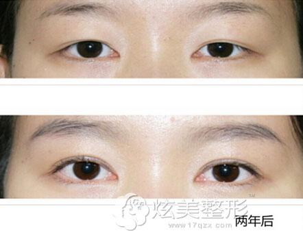 柳昌佑院长双眼皮修复案例