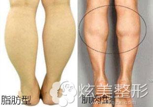 6个黄金瘦腿运动 远离小粗腿