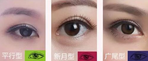 不同脸型配不同双眼皮形状