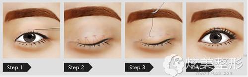美莱360°综合美眼术手术原理