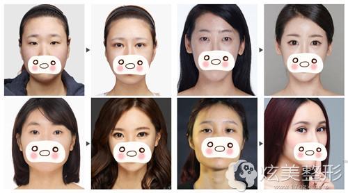 上海美莱整形双眼皮手术真人案例