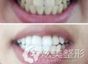 真实案例上海圣贝口腔牙齿美白前后对比