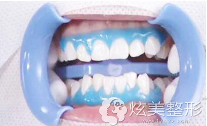 牙齿炫彩美白效果图上海圣贝口腔