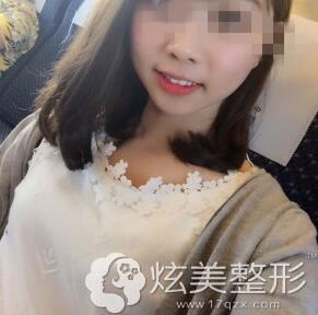 真人效果上海圣贝口腔炫彩美白牙齿