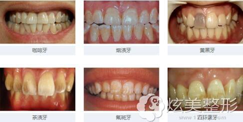 需要炫彩美白的牙齿类型