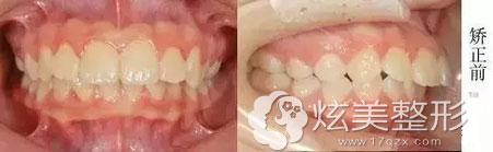 矫正前照牙齿矫正案例上海万众