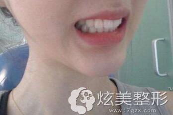 术后效果真人牙齿矫正案例