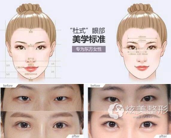 健康美眼真实案例上海美莱杜园园教授