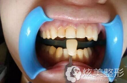 治疗前,医生特意为刘MM做了比色检查