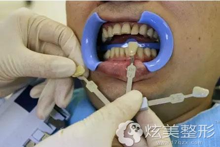 医生给我牙齿比色,记录下美白前的色号并进行拍照