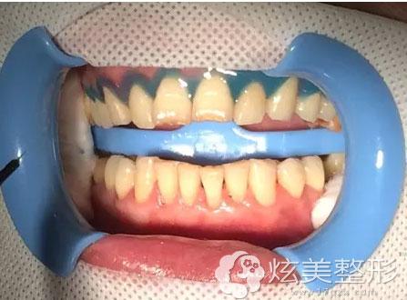使用光固化树脂牙龈保护剂将牙龈边缘封闭,充分保护牙龈