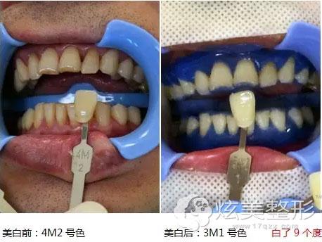 牙齿前后对比颜色广州和睦家真实案例