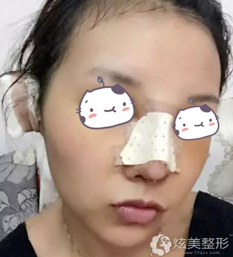 术后鼻子在慢慢恢复中