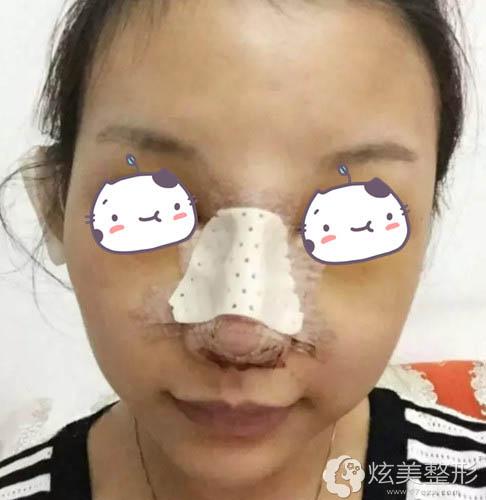 薛克墘医生为我刚做完隆鼻手术的样子