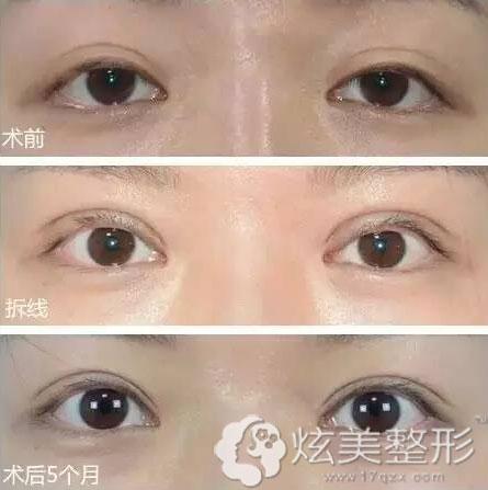 郑钟必院长双眼皮修复手术案例展示
