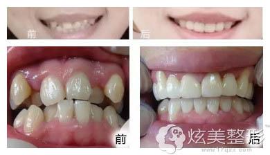壹加壹整形医院牙齿矫正前后对比