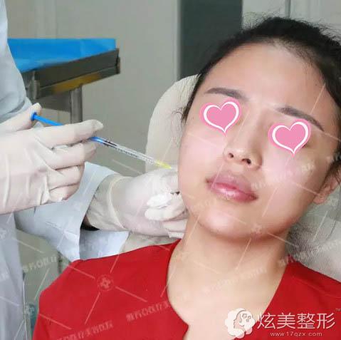 石家庄雅芳亚医生为我注射瘦脸针
