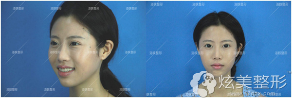 瘦脸针术后第二天还在恢复过程中,看不到效果