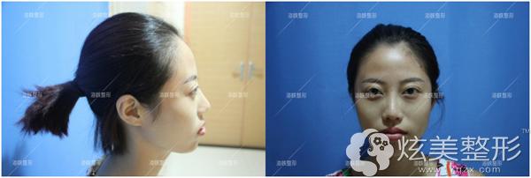 注射瘦脸针术前样子