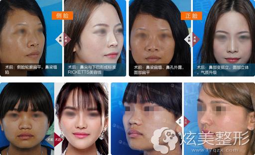 在福州台江整形做鼻综合案例