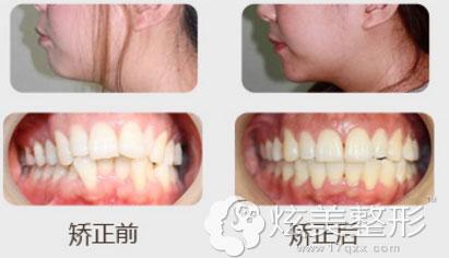 美容冠牙齿矫正案例