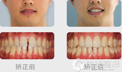 南京博韵口腔医院隐形牙齿矫正案例
