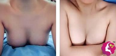 术后15天胸部慢慢恢复中