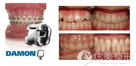 北京维尔传统钢丝托槽牙齿矫正案例