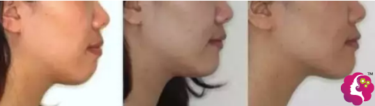 牙齿矫正改善宽脸凸嘴情况