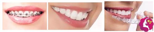 不同的牙齿矫正器