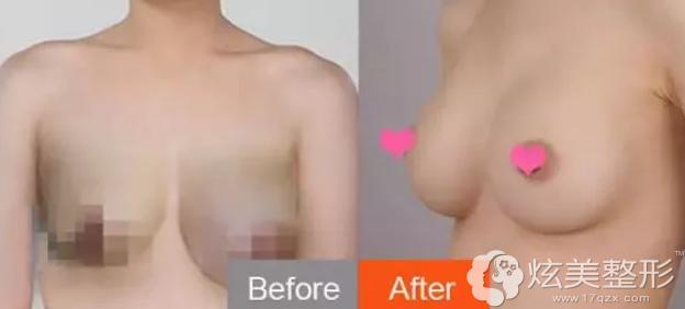 奥美定隆胸修复案例