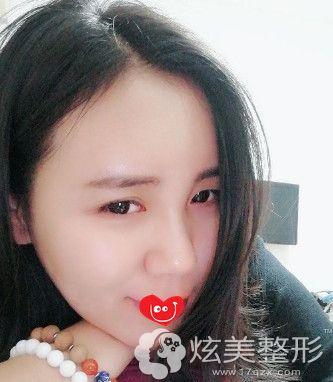 在上海美莱做脂肪填充额头2个月恢复自然