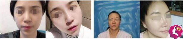 面部线雕和拉皮手术案例对比图