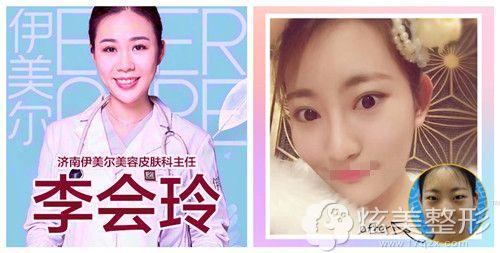李会玲医生注射瘦脸针案例