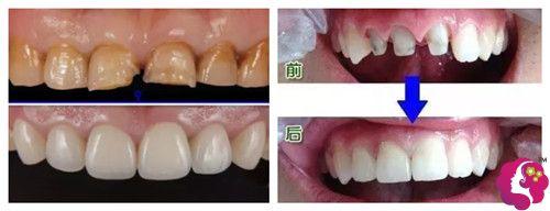 珠海易牙口腔门诊部全瓷牙修复案例