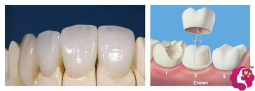 易牙门诊部采用的全瓷牙材料