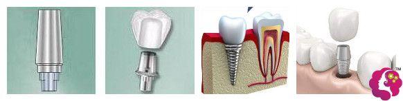 珠海仁爱口腔三大种植牙系统