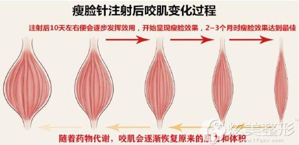 注射瘦脸针术后演技的变化过程