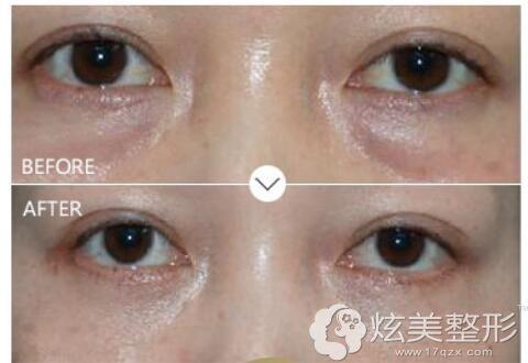 找杜园园医生做去眼袋修复案例对比照