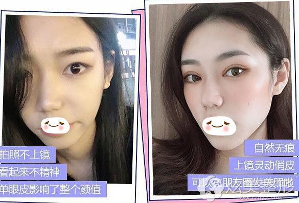 西安画美双眼皮整形术前后对比