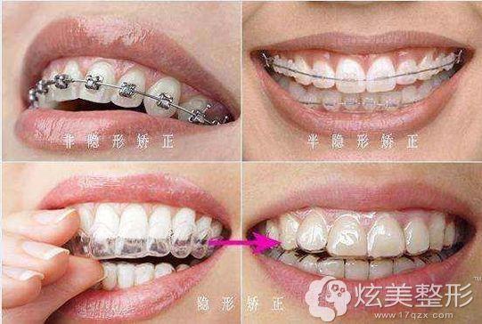 矫正牙齿使用的三种术后材料及优惠价格