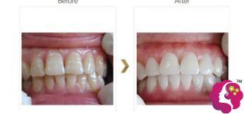 冷光牙齿美白前后对比